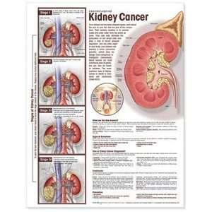 Understanding Kidney Cancer Anatomy Chart/Poster: